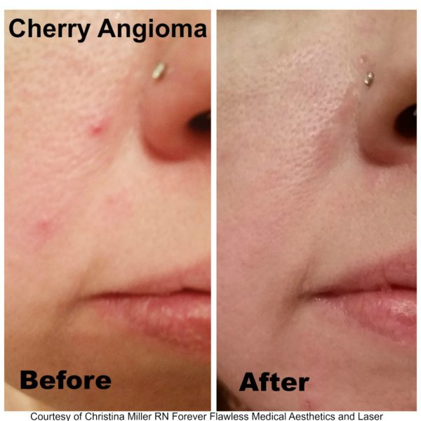 Skin Classic Cherry before and after