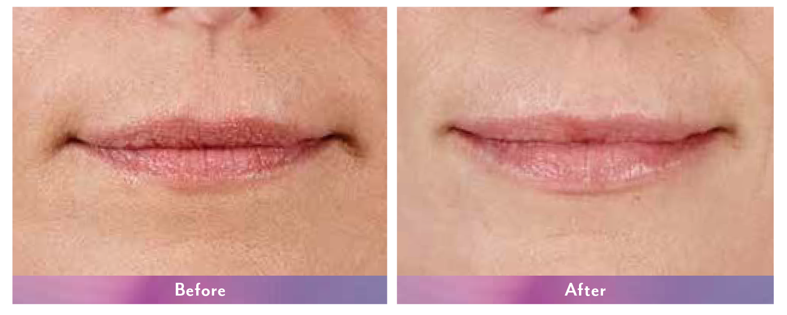 Juvederm Ultra XC Before and After 2