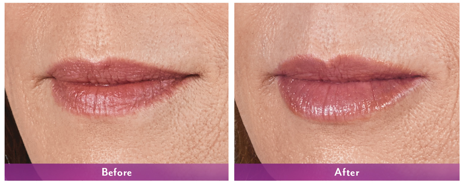 Juvederm Volbella Before and After