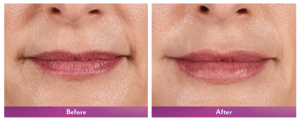 Juvederm Volbella Before and After 4