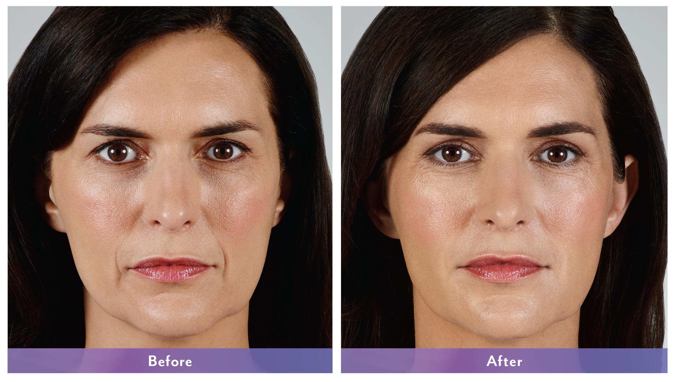 Juvederm Vollure Before and After 2