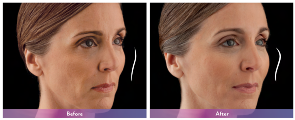 Juvederm Voluma Before and After 2