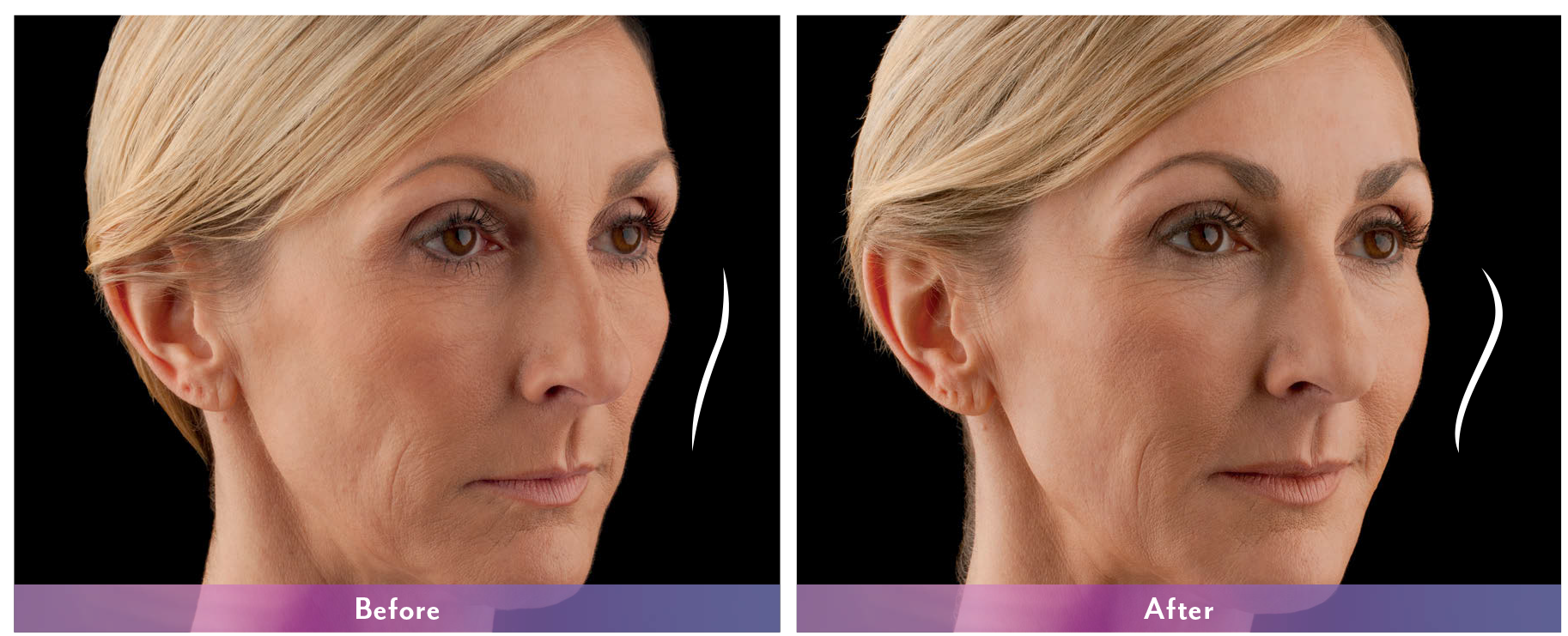 Juvederm Voluma Before and After 3