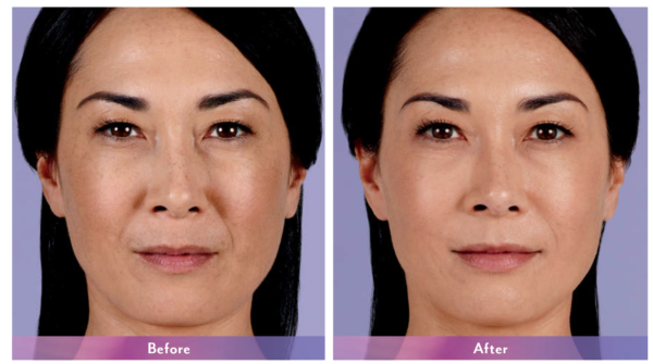 Juvederm XC Before and After 2