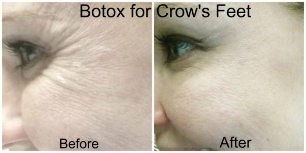 Botox Crows Feet Before and After